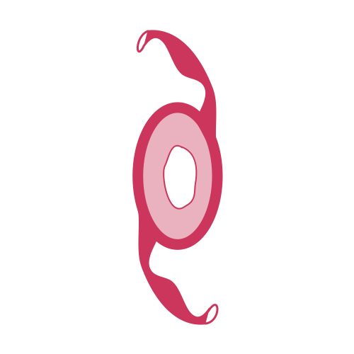 Artisitc representation of yag capsulotomy