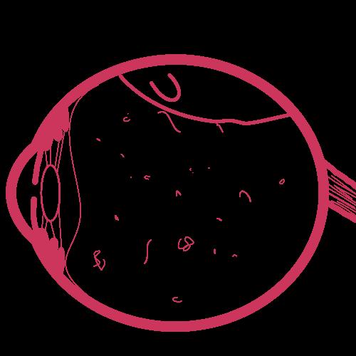 Artistic representation of retinal detachment